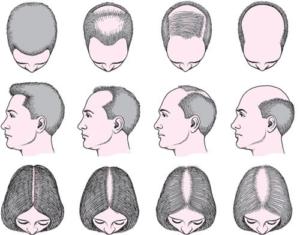 Prikaz ispadanja kose kod žene i muškarca